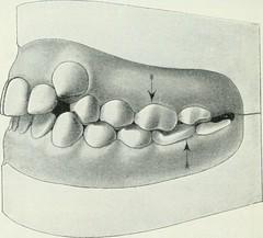 """Image from page 91 of """"Lehrbuch der orthodontie fur studierende und zahnartze mit enschluss der geschichte der orthodontie"""" (1906)"""