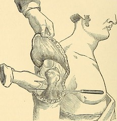 "Image from page 373 of ""The principles and practice of surgery"" (1872)"