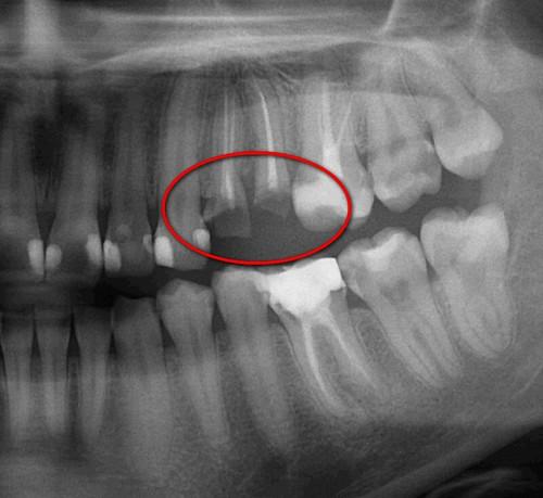 豐美牙醫診所-3D齒雕4