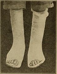 "Image from page 470 of ""Postoperative treatment; an epitome of the general management of postoperative care and treatment of surgical cases as practised by prominent American and European surgeons"" (1907)"