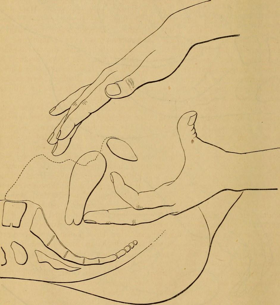 retroflexion gebärmutter
