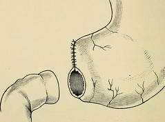 "Image from page 595 of ""Minor surgery and bandaging; including the treatment of fractures and dislocations, the ligation of arteries, amputations, excisions and resections, intestinal anastomosis, operations upon nerves and tendons, tracheotomy, intubatio"