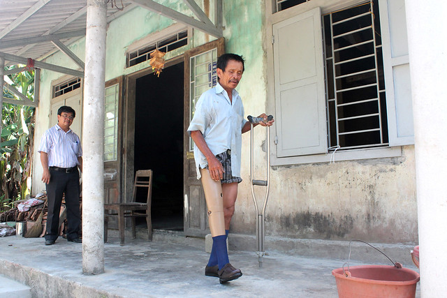 After 40 years relying on crutches, Mr. Truong is now walking with a new leg