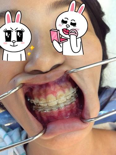 台中黃經理牙醫診所賴怡妏醫師牙齒矯正4