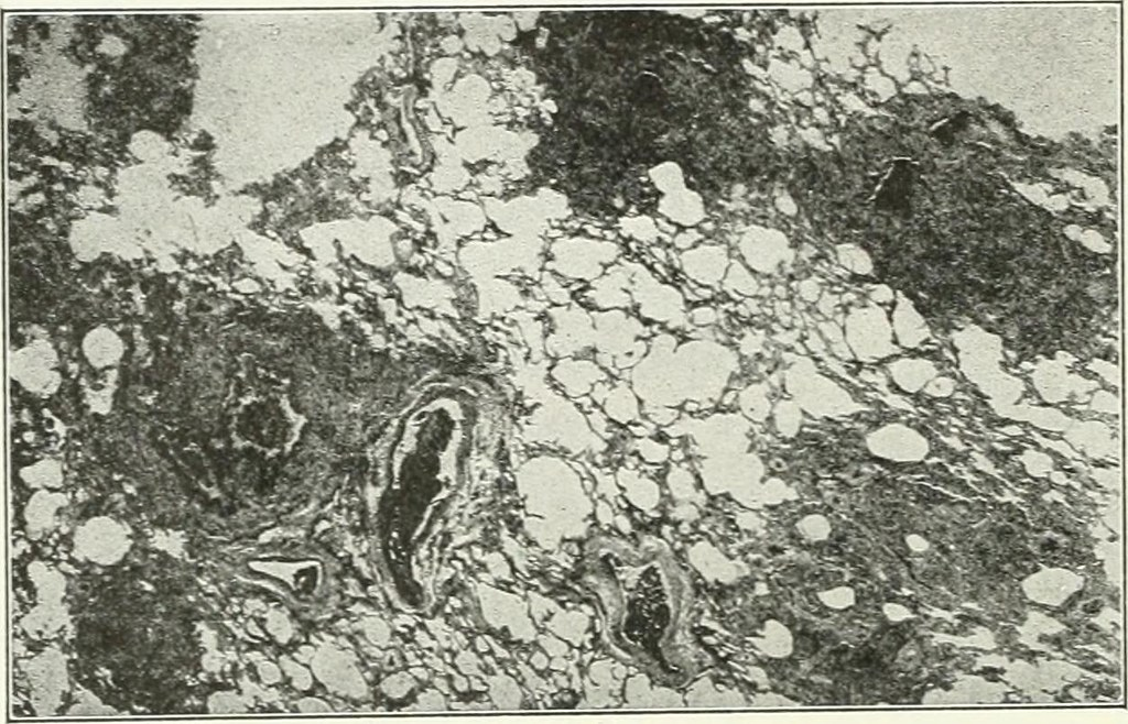 Image from page 563 of A reference handbook of the medical sciences, embracing the entire range of scientific and practical medicine and allied science (1913)