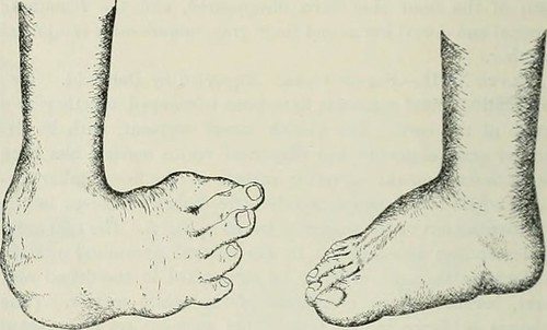 "Image from page 405 of ""International record of medicine"" (1865)"