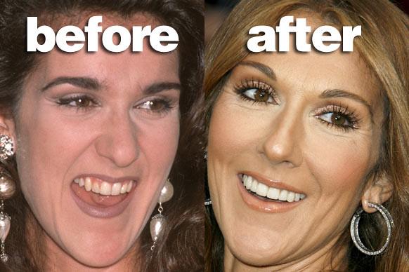 teeth_celine