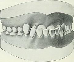 """Image from page 219 of """"Lehrbuch der orthodontie fur studierende und zahnartze mit enschluss der geschichte der orthodontie"""" (1906)"""