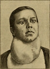 """Image from page 206 of """"Postoperative treatment; an epitome of the general management of postoperative care and treatment of surgical cases as practised by prominent American and European surgeons"""" (1907)"""