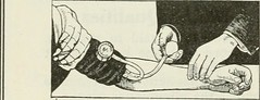 """Image from page 91 of """"Clinical medicine"""" (1894)"""