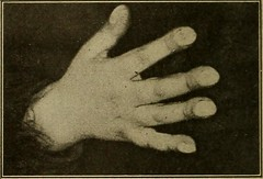"""Image from page 211 of """"Medical diagnosis for the student and practitioner"""" (1922)"""