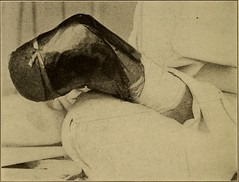 """Image from page 423 of """"Postoperative treatment; an epitome of the general management of postoperative care and treatment of surgical cases as practised by prominent American and European surgeons"""" (1907)"""