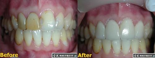 台中豐美牙醫診所 拍婚紗之牙齒美白案例1