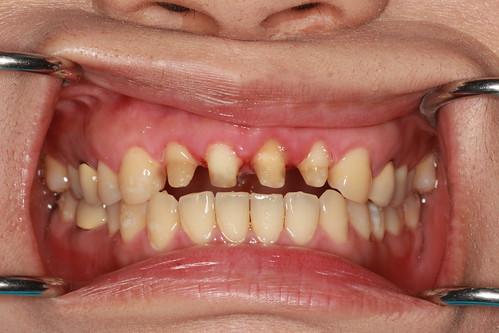 黃經理牙醫診所 賴盈利醫師的全瓷冠治療12