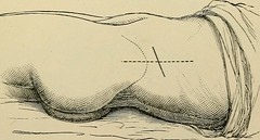 "Image from page 582 of ""Minor surgery and bandaging; including the treatment of fractures and dislocations, the ligation of arteries, amputations, excisions and resections, intestinal anastomosis, operations upon nerves and tendons, tracheotomy, intubatio"