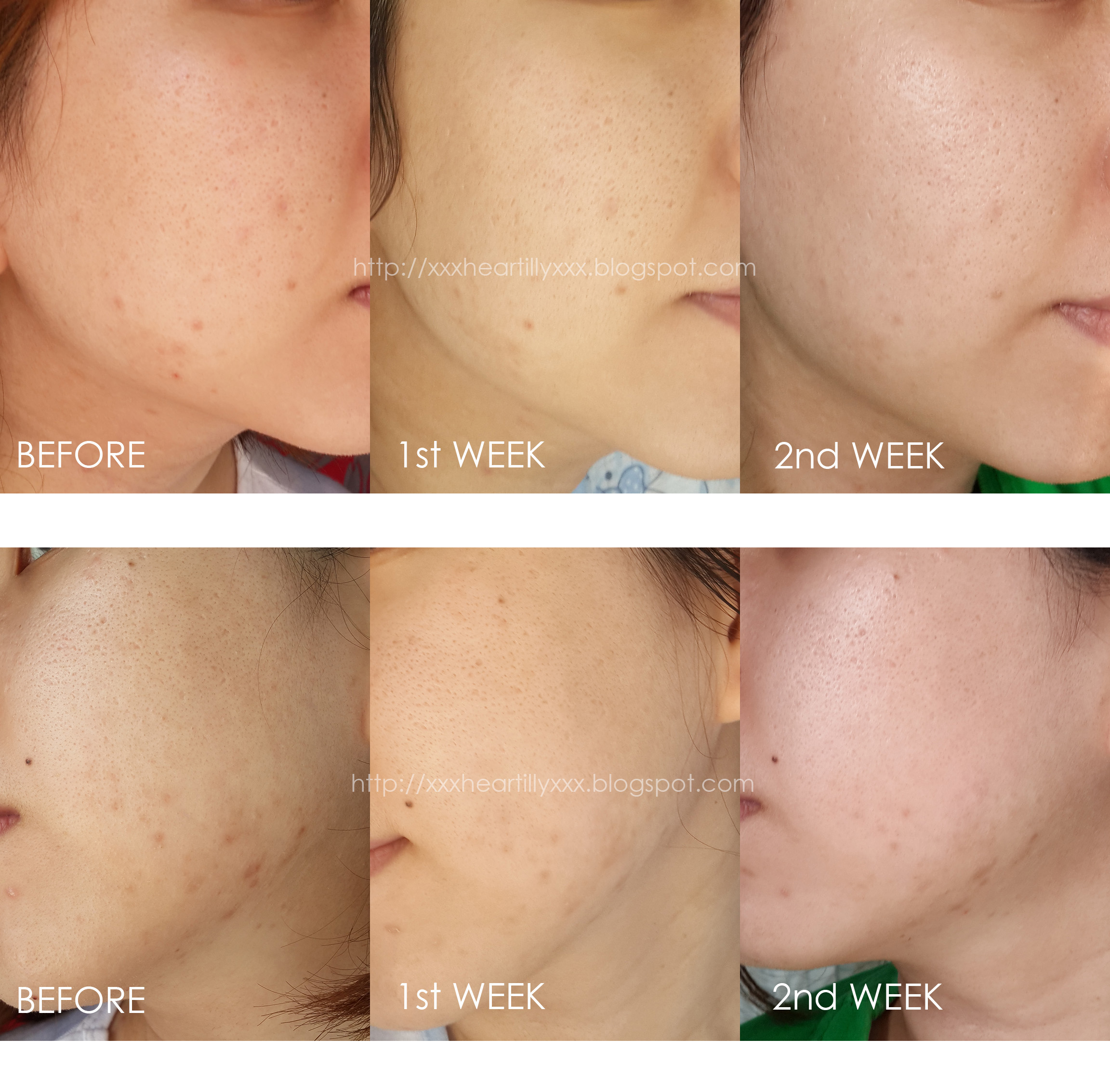 skin progress