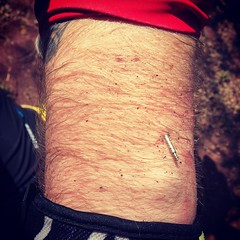 Sometimes you go mountain biking. Sometimes you hug trees. Sometimes, your watch pin breaks out while you're hugging a tree and buries itself in your arm. For safety. And sometimes you don't notice for an hour. #mashcc
