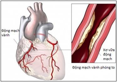 Xơ vữa động mạch vành