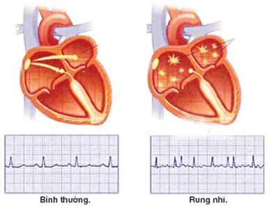 Nhịp tim bình thường và rung nhĩ